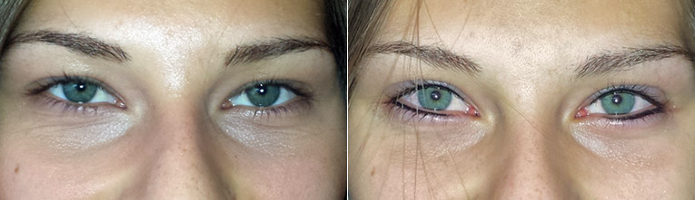 "Permanent Make Up: Lidstrich ""Vorher-Nachher"""