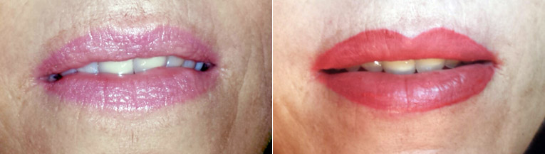 "Permanent Make Up: Lippen ""Vorher-Nachher"""